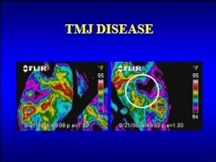 TMJ disease