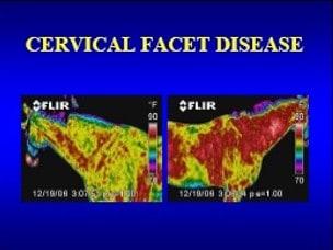 cervical facet disease
