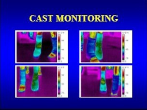 cast monitoring