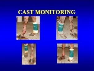 cast monitoring