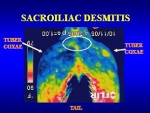 sacroiliac desmitis