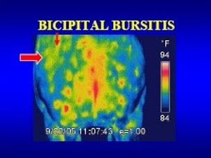 bicipital bursistis